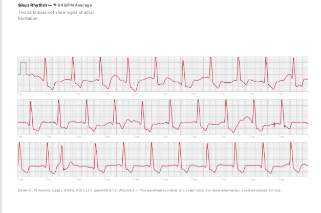 EKG Picture Apple WAtch